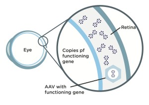 Gene Therapy-2